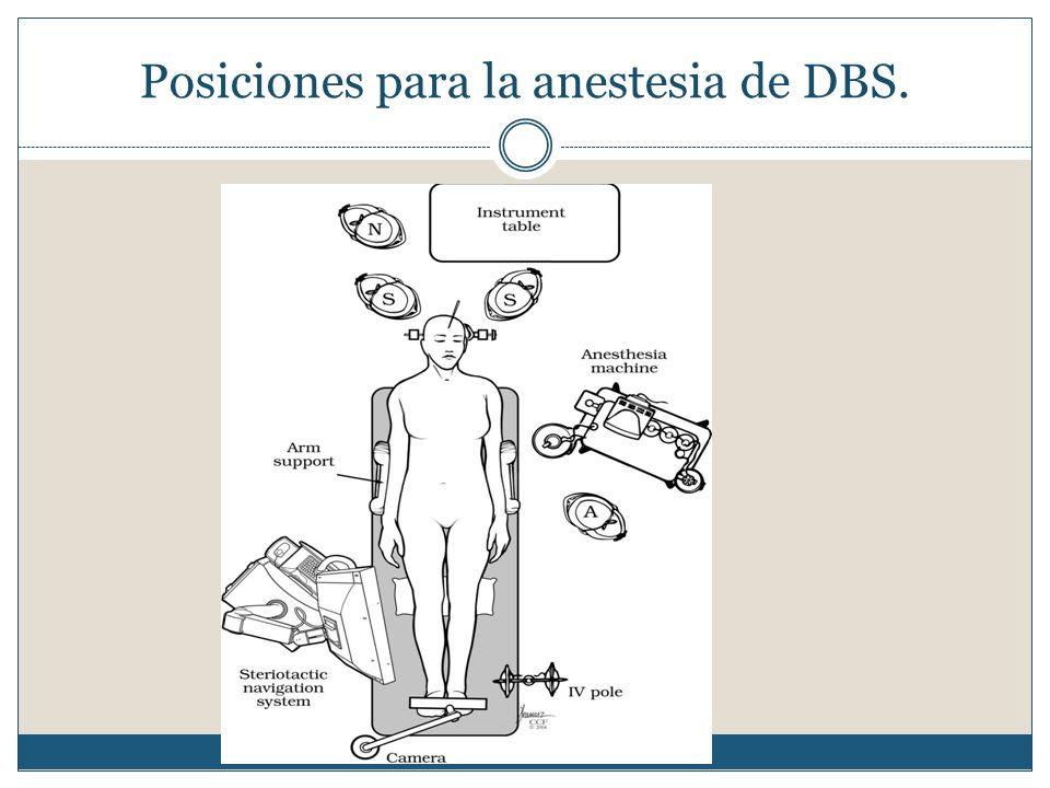 Posiciones para la anestesia de DBS.