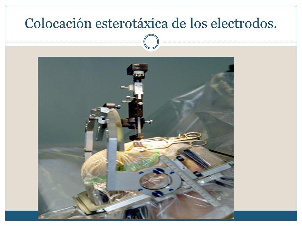 Colocación esterotáxica de los electrodos.