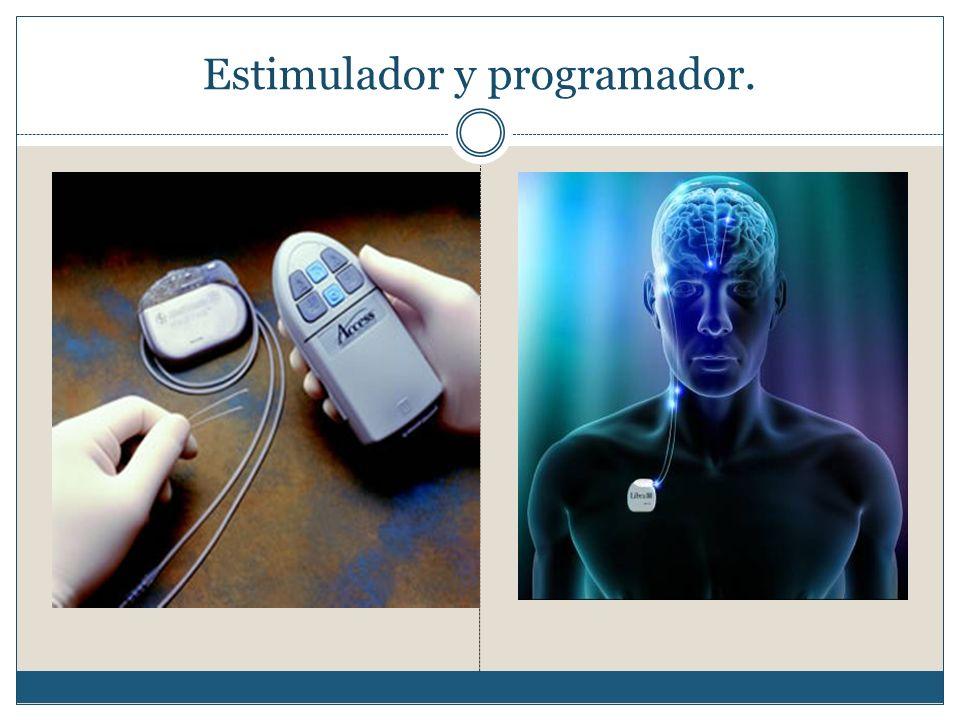 Estimulador y programador.