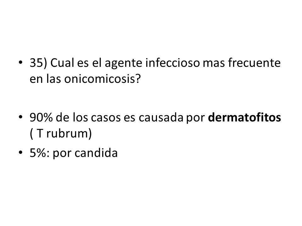 35) Cual es el agente infeccioso mas frecuente en las onicomicosis? 90% de los casos es causada por dermatofitos ( T rubrum) 5%: por candida