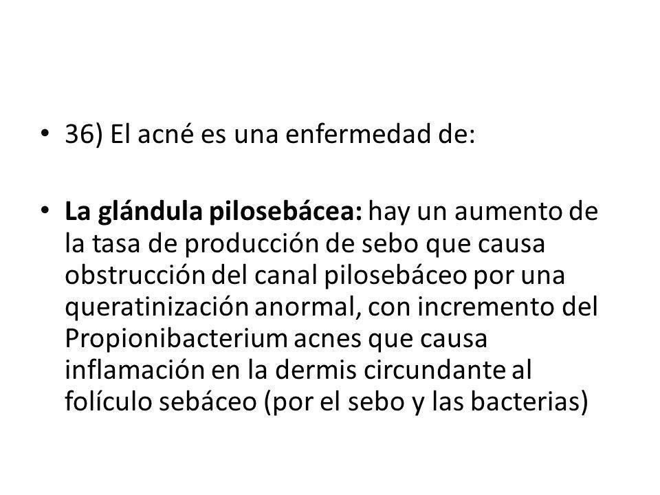 36) El acné es una enfermedad de: La glándula pilosebácea: hay un aumento de la tasa de producción de sebo que causa obstrucción del canal pilosebáceo