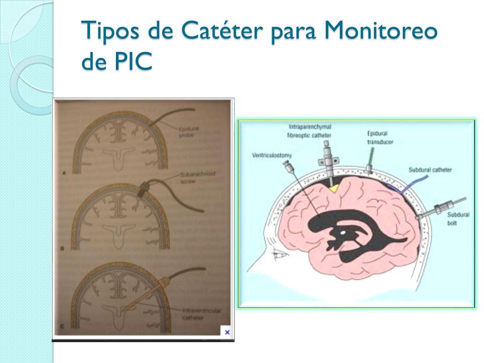 Tipos de Catéter para Monitoreo de PIC