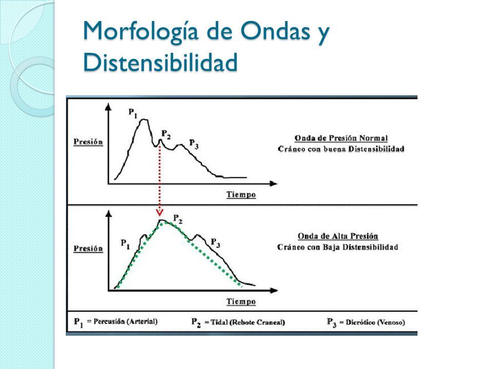 Morfología de Ondas y Distensibilidad