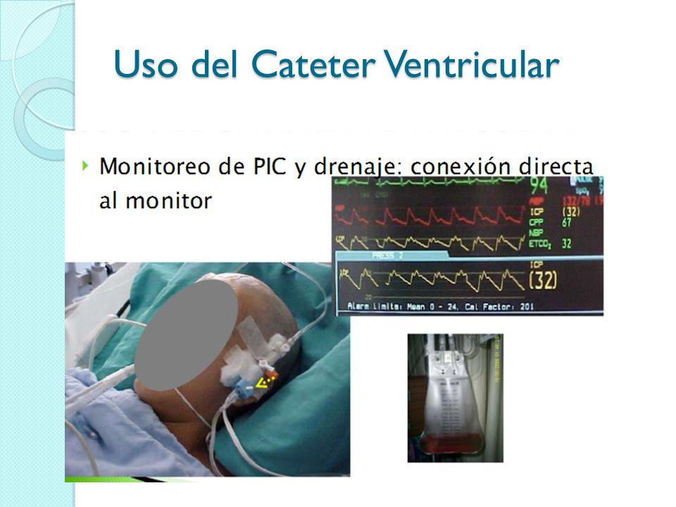 Uso del Cateter Ventricular