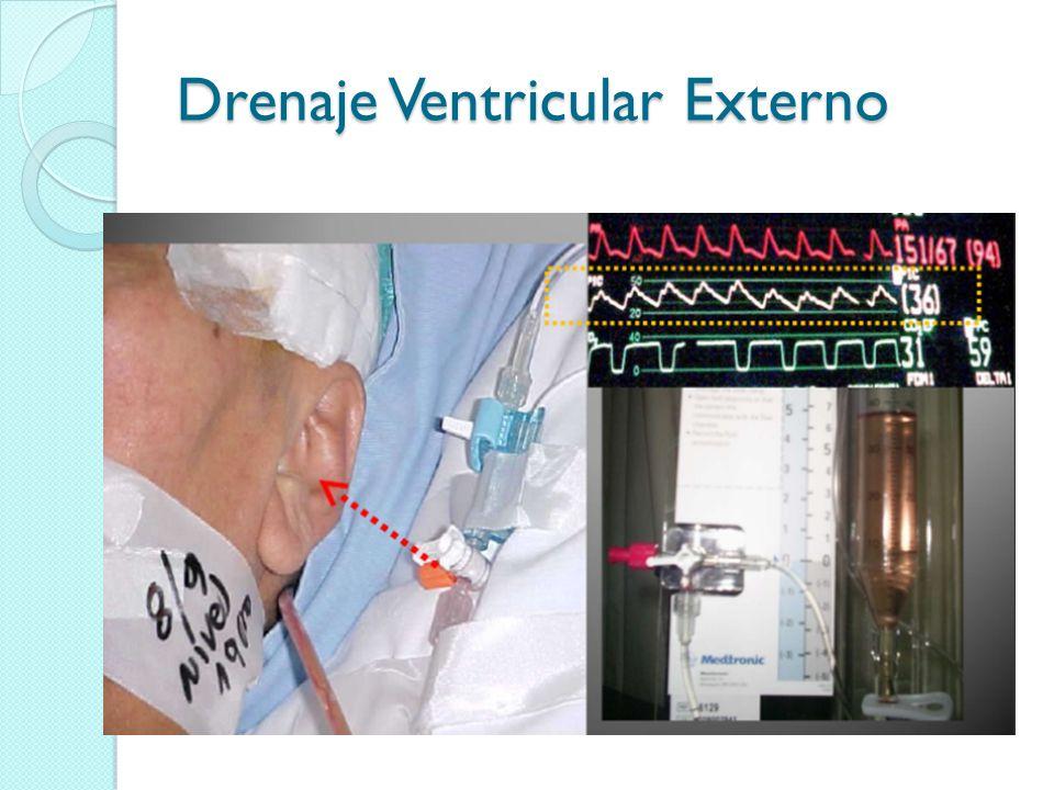 Drenaje Ventricular Externo