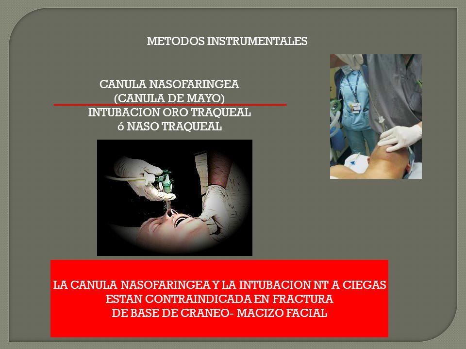 METODOS INSTRUMENTALES CANULA NASOFARINGEA (CANULA DE MAYO) INTUBACION ORO TRAQUEAL ó NASO TRAQUEAL LA CANULA NASOFARINGEA Y LA INTUBACION NT A CIEGAS ESTAN CONTRAINDICADA EN FRACTURA DE BASE DE CRANEO- MACIZO FACIAL