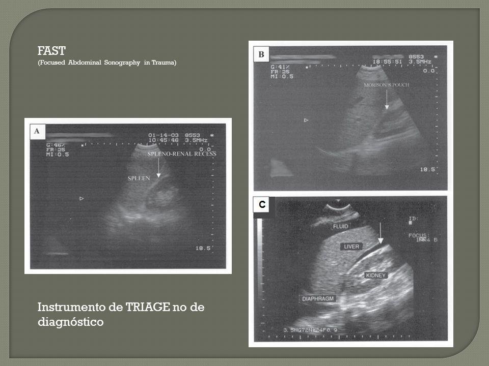FAST (Focused Abdominal Sonography in Trauma) Instrumento de TRIAGE no de diagnóstico