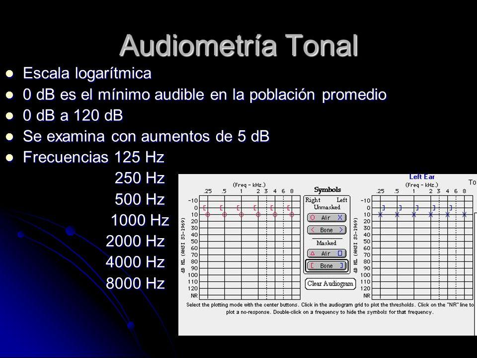 Audiometría Tonal Escala logarítmica Escala logarítmica 0 dB es el mínimo audible en la población promedio 0 dB es el mínimo audible en la población promedio 0 dB a 120 dB 0 dB a 120 dB Se examina con aumentos de 5 dB Se examina con aumentos de 5 dB Frecuencias 125 Hz Frecuencias 125 Hz 250 Hz 250 Hz 500 Hz 500 Hz 1000 Hz 1000 Hz 2000 Hz 2000 Hz 4000 Hz 4000 Hz 8000 Hz 8000 Hz