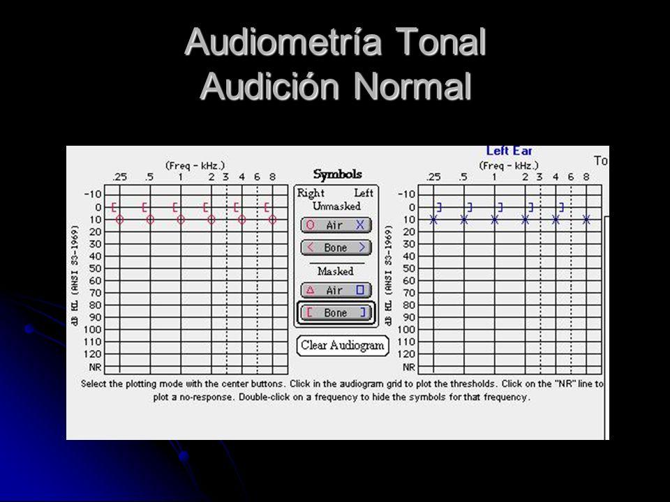 Audiometría Tonal Audición Normal