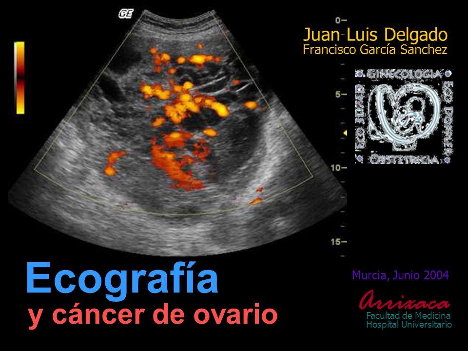 Murcia, Junio 2004 Arrixaca Facultad de Medicina Hospital Universitario y cáncer de ovario Ecografía Juan Luis Delgado Francisco García Sanchez