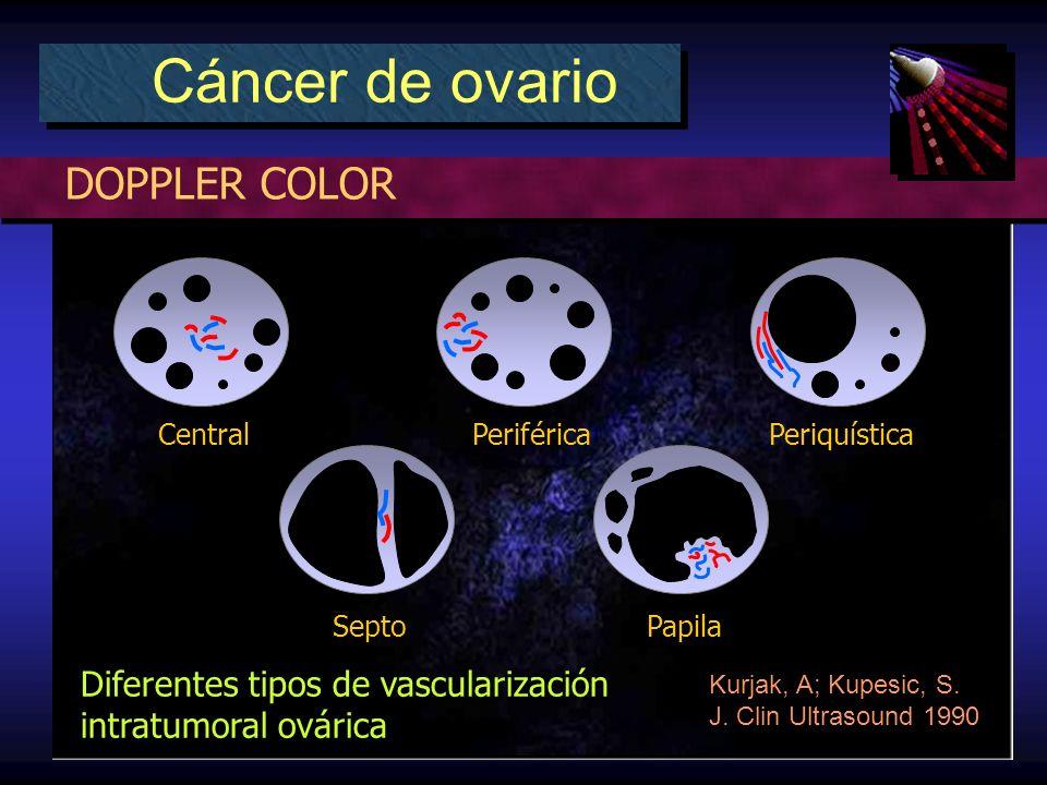 DOPPLER COLOR Cáncer de ovario Diferentes tipos de vascularización intratumoral ovárica Kurjak, A; Kupesic, S.