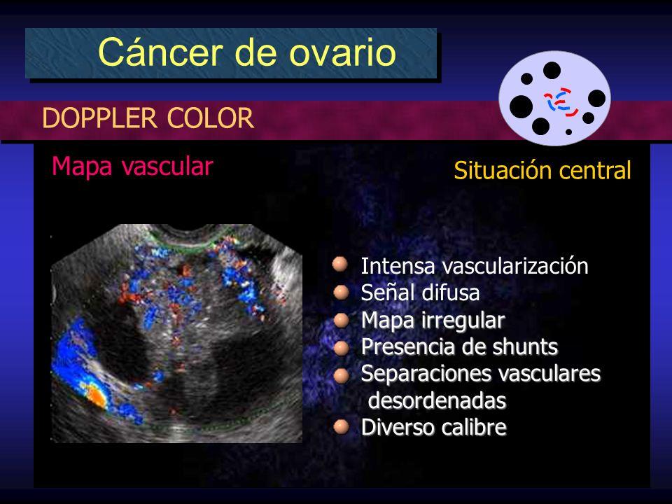 DOPPLER COLOR Cáncer de ovario Situación central Intensa vascularización Señal difusa Mapa irregular Presencia de shunts Separaciones vasculares desordenadas desordenadas Diverso calibre Mapa vascular