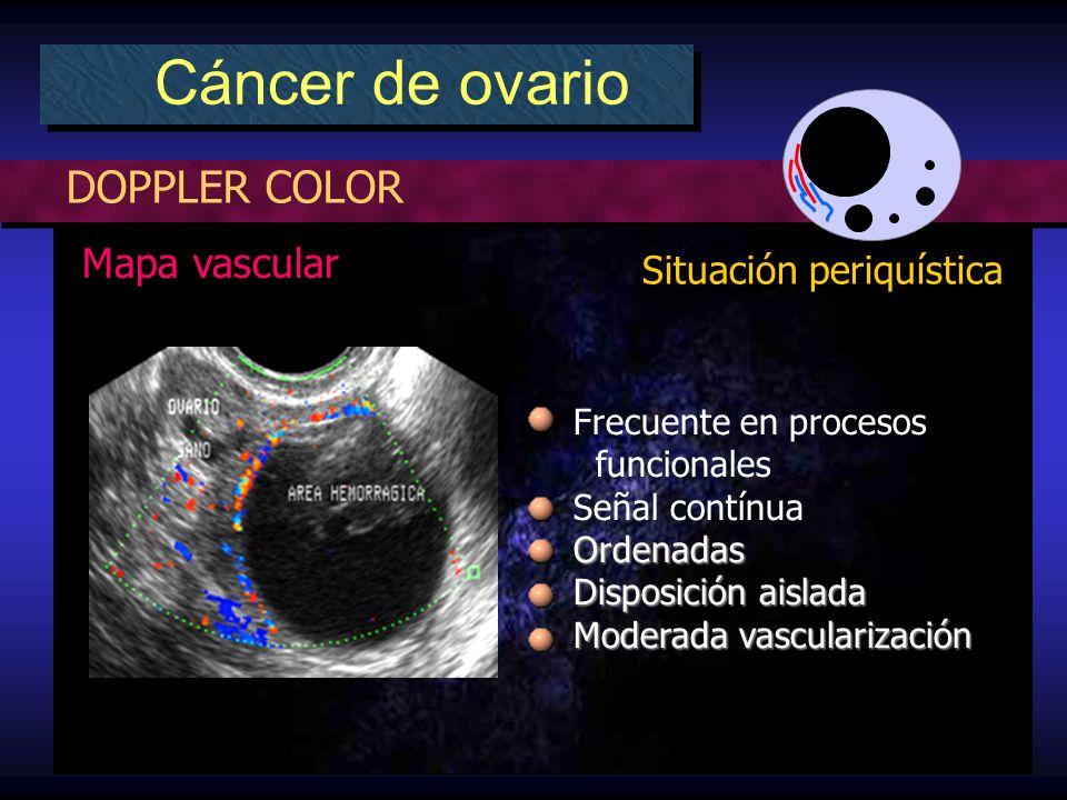 DOPPLER COLOR Cáncer de ovario Situación periquística Mapa vascular Frecuente en procesos funcionales Señal contínuaOrdenadas Disposición aislada Moderada vascularización