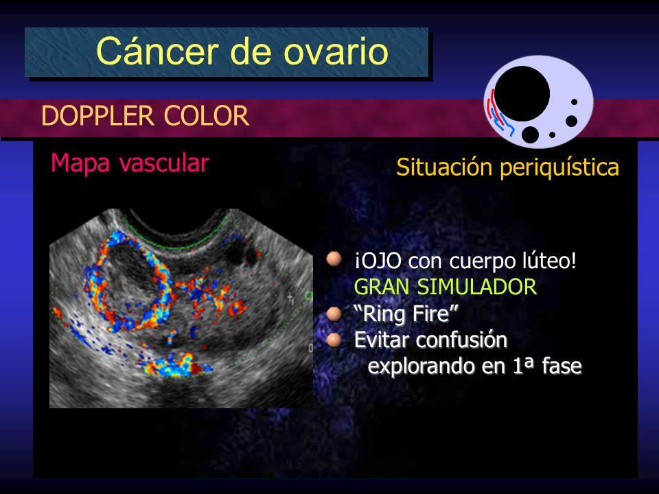 DOPPLER COLOR Cáncer de ovario Situación periquística Mapa vascular ¡OJO con cuerpo lúteo! GRAN SIMULADOR Ring Fire Evitar confusión explorando en 1ª