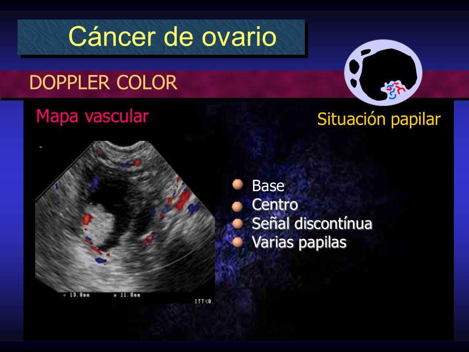 DOPPLER COLOR Cáncer de ovario Situación papilar Mapa vascular BaseCentro Señal discontínua Varias papilas