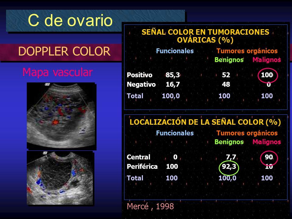DOPPLER COLOR C de ovario Mapa vascular LOCALIZACIÓN DE LA SEÑAL COLOR (%) Funcionales Tumores orgánicos Benignos Malignos Central 0 7,7 90 Periférica 100 92,3 10 Total 100 100,0 100 SEÑAL COLOR EN TUMORACIONES OVÁRICAS (%) Funcionales Tumores orgánicos Benignos Malignos Positivo 85,3 52 100 Negativo 16,7 48 0 Total 100,0 100 100 Mercé, 1998