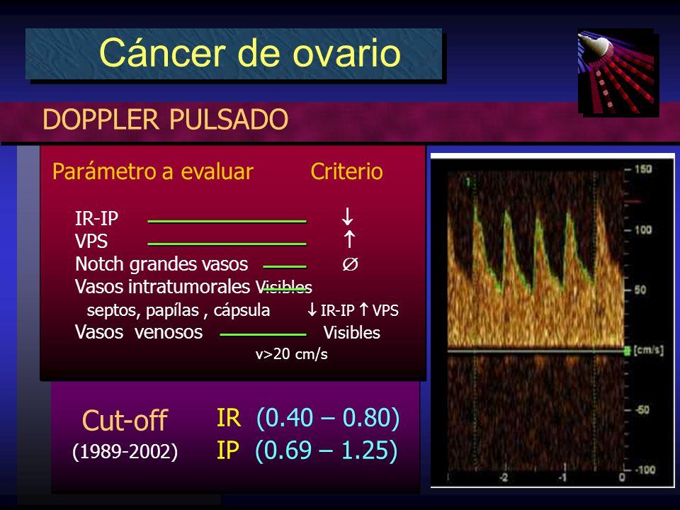Cut-off (1989-2002) IR (0.40 – 0.80) IP (0.69 – 1.25) DOPPLER PULSADO Cáncer de ovario Parámetro a evaluar Criterio IR-IP VPS Notch grandes vasos Vasos intratumorales Visibles septos, papílas, cápsula IR-IP VPS Vasos venosos Visibles v>20 cm/s