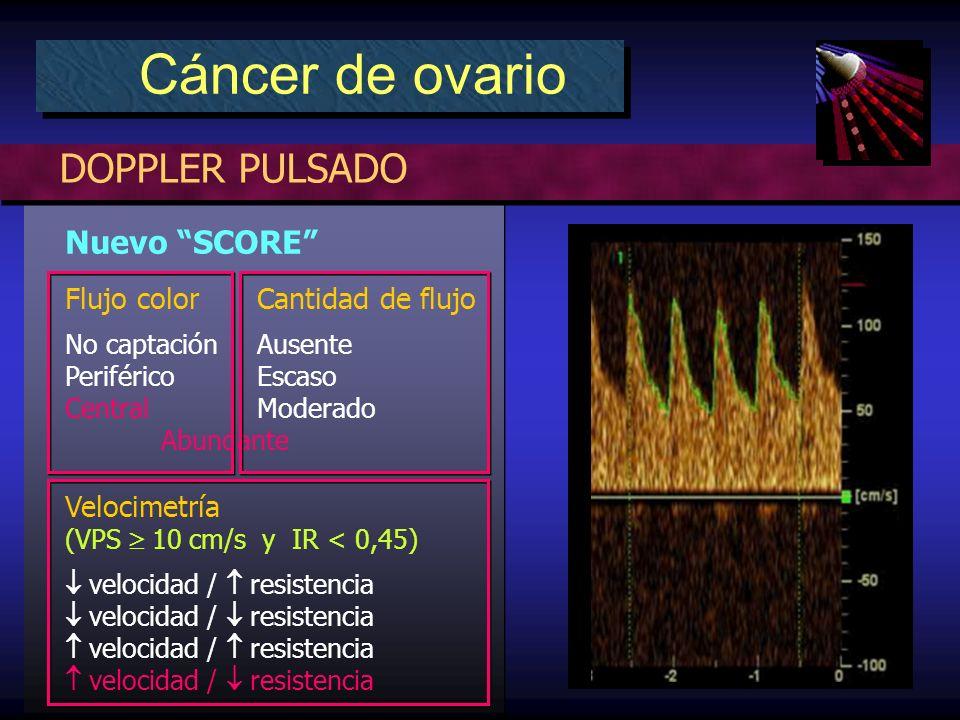 Nuevo SCORE Flujo color Cantidad de flujo No captación Ausente PeriféricoEscaso Central Moderado Abundante Velocimetría (VPS 10 cm/s y IR < 0,45) velocidad / resistencia DOPPLER PULSADO Cáncer de ovario