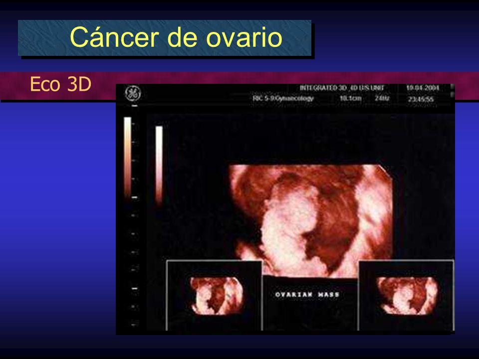 Eco 3D Cáncer de ovario