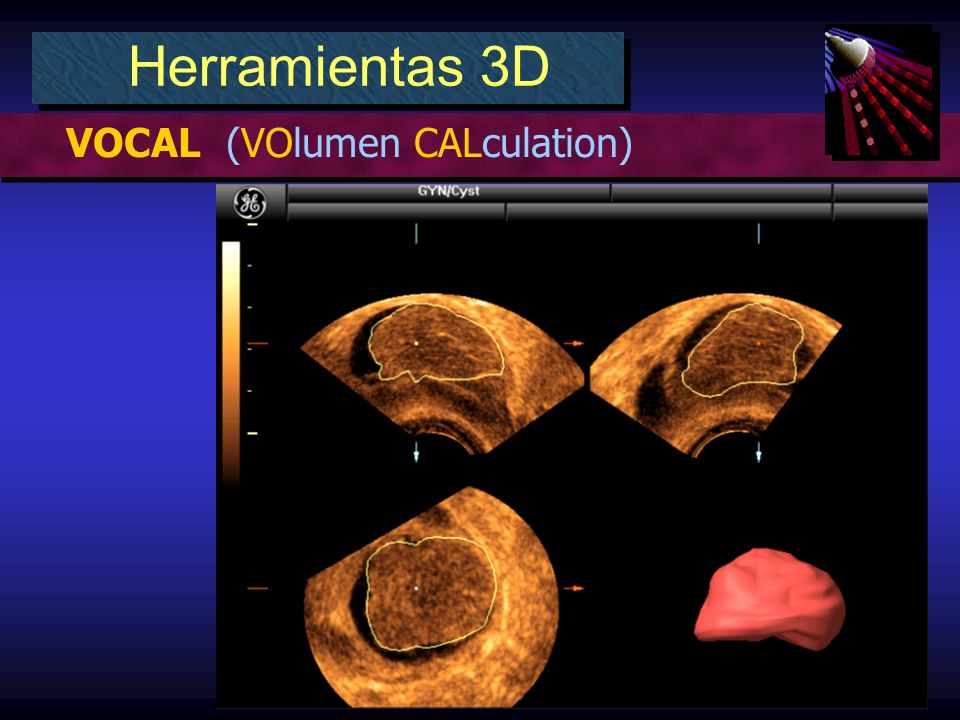 Herramientas 3D VOCAL (VOlumen CALculation)