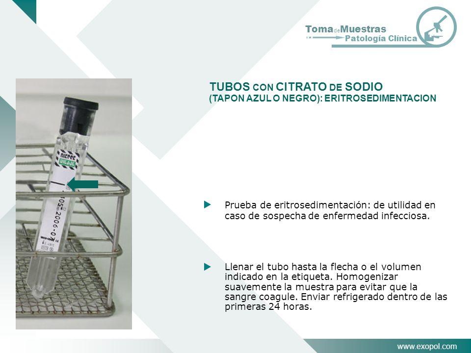 www.exopol.com Toma de Muestras Patología Clínica TUBOS CON CITRATO DE SODIO (TAPON AZUL O NEGRO): ERITROSEDIMENTACION Prueba de eritrosedimentación: