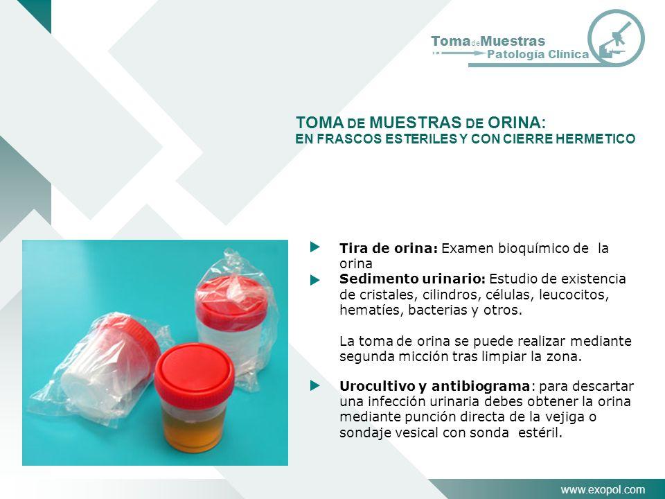 www.exopol.com Toma de Muestras Patología Clínica TOMA DE MUESTRAS DE ORINA: EN FRASCOS ESTERILES Y CON CIERRE HERMETICO Tira de orina: Examen bioquím