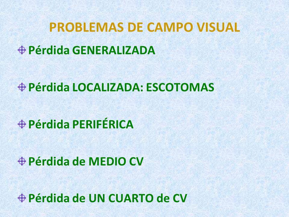AGUDEZA Y CAMPO VISUALES DEFICIENTE VISUAL 0,3 10º AFILIADO ONCE 0,1 10º AV CV