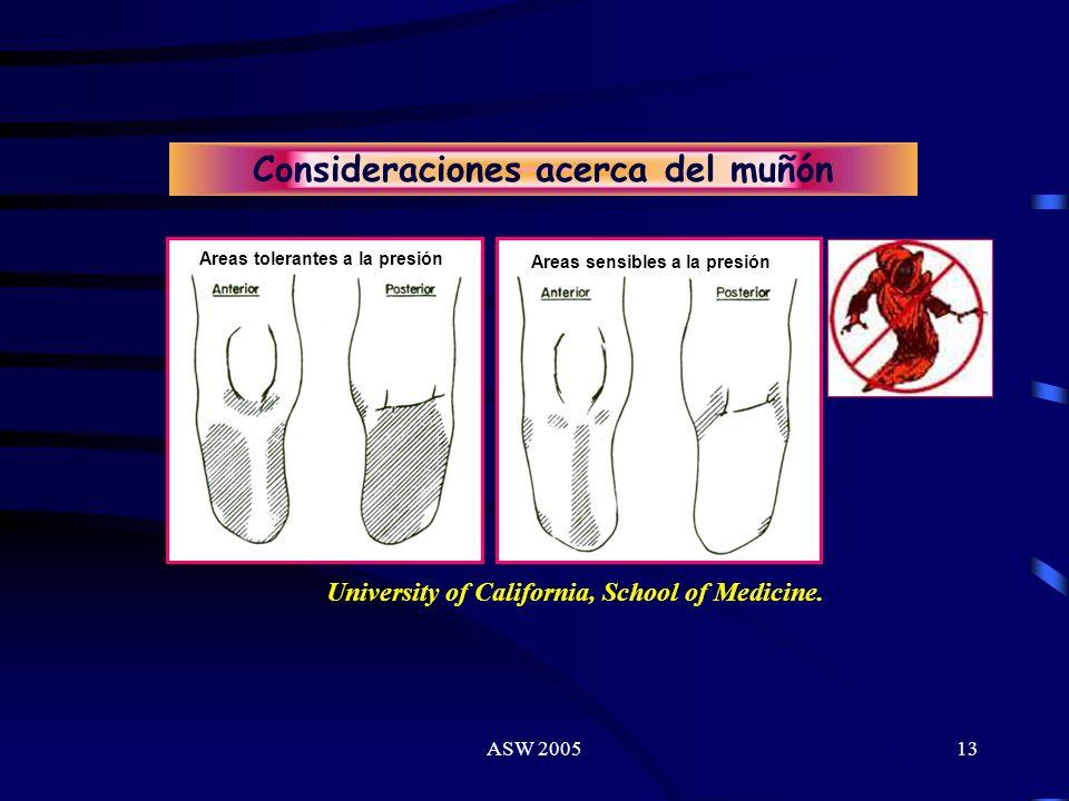 ASW 200512 Aspectos clínicos ? Edema ? Cicatriz ? Sensibilidad ? Fuerza de los músculos del Tronco