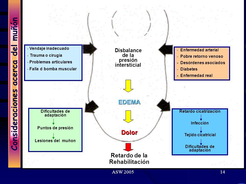 ASW 200513 Consideraciones acerca del muñón University of California, School of Medicine. Areas tolerantes a la presión Areas sensibles a la presión