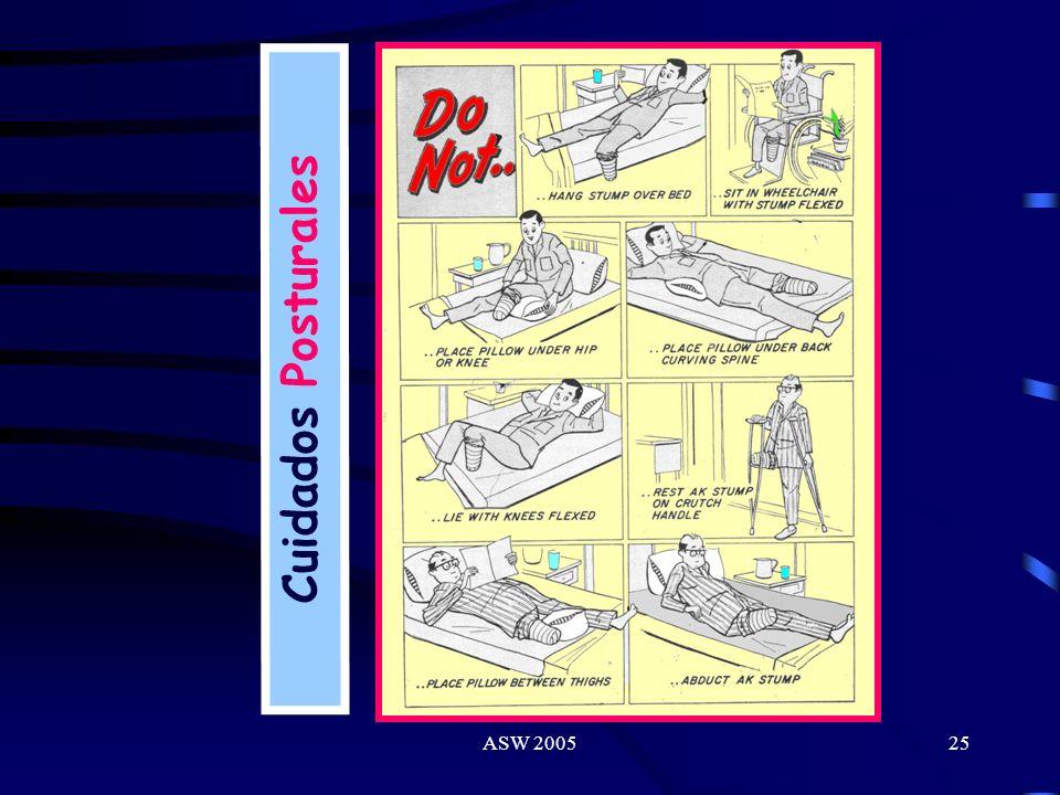 ASW 200524 Entrenamiento Preprotésico II Rutina de Muñón: Medidas de autocuidado del muñón. Manejo y control postural. Vendaje modelante. Cinesiterapi