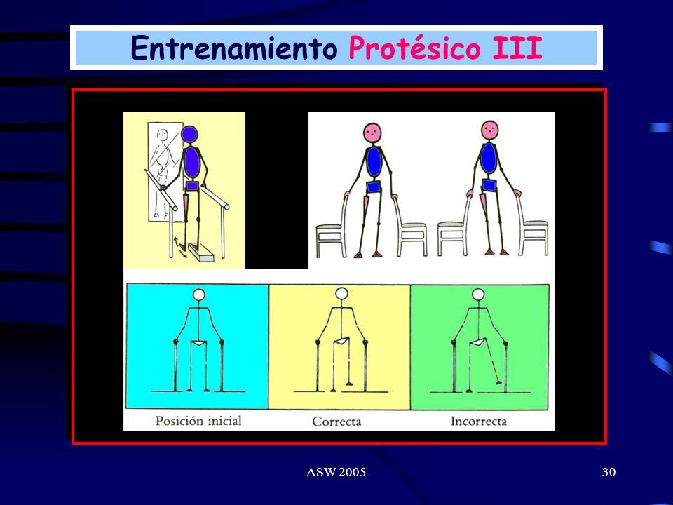 ASW 200529 Comprende: Preparación del muñón. Colocación de la prótesis. Ejercicios de equilibración en paralelas. Patronización de marcha (terreno lis