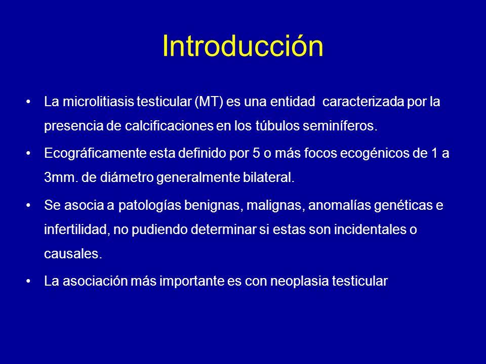 Objetivo Demostrar la asociación entre microlitiasis testicular y neoplasia testicular mediante serie de casos.