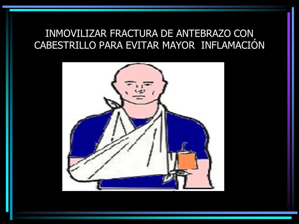 INMOVILIZAR FRACTURA DE ANTEBRAZO CON CABESTRILLO PARA EVITAR MAYOR INFLAMACIÓN