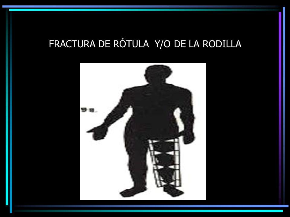 FRACTURA DE RÓTULA Y/O DE LA RODILLA