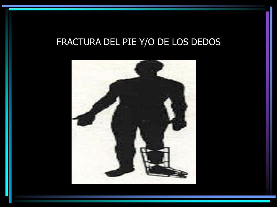 FRACTURA DEL PIE Y/O DE LOS DEDOS