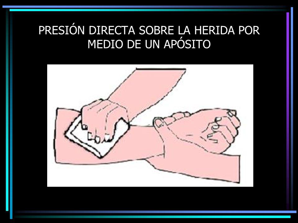 PRESIÓN DIRECTA SOBRE LA HERIDA POR MEDIO DE UN APÓSITO