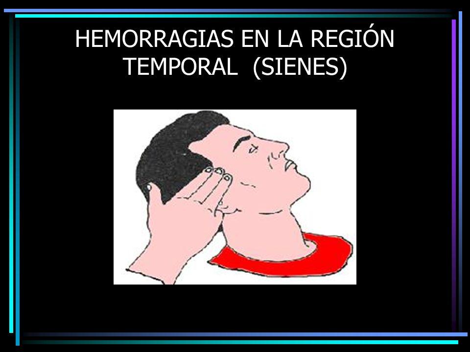 HEMORRAGIAS EN LA REGIÓN TEMPORAL (SIENES)