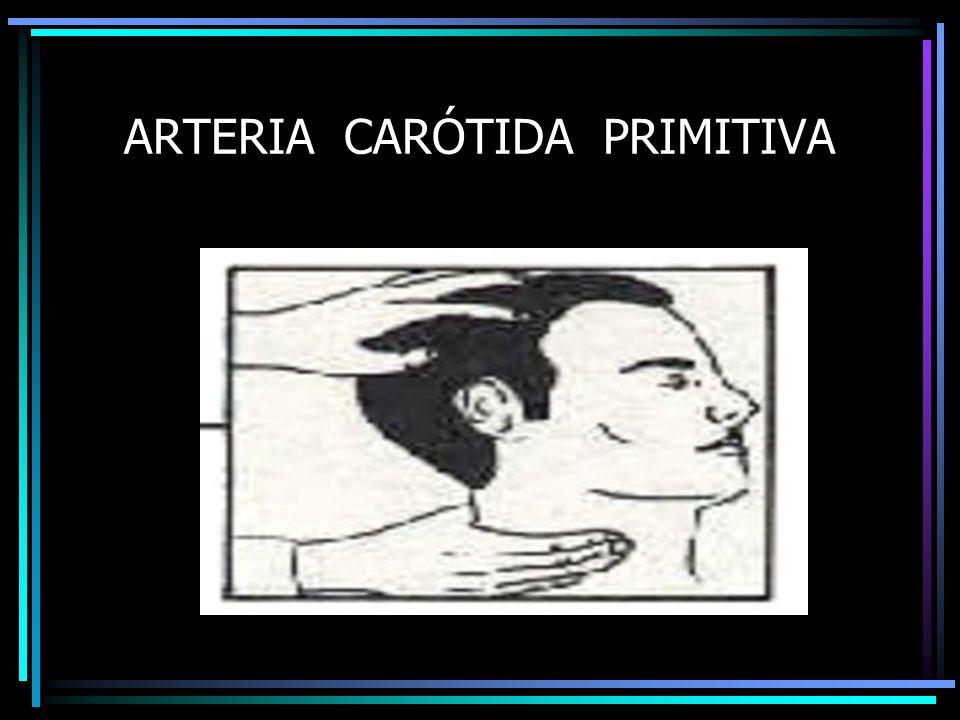 ARTERIA CARÓTIDA PRIMITIVA