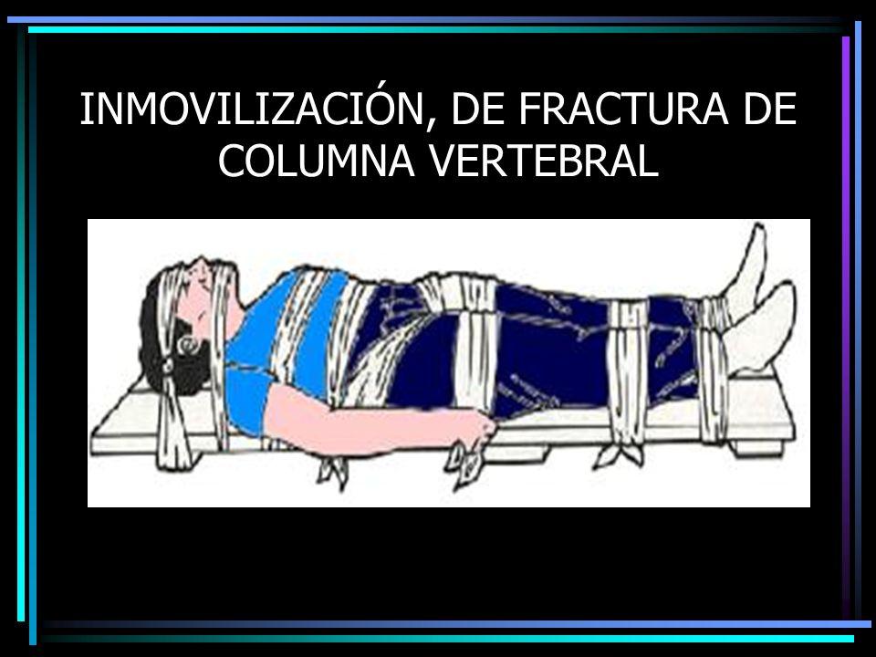 INMOVILIZACIÓN, DE FRACTURA DE COLUMNA VERTEBRAL