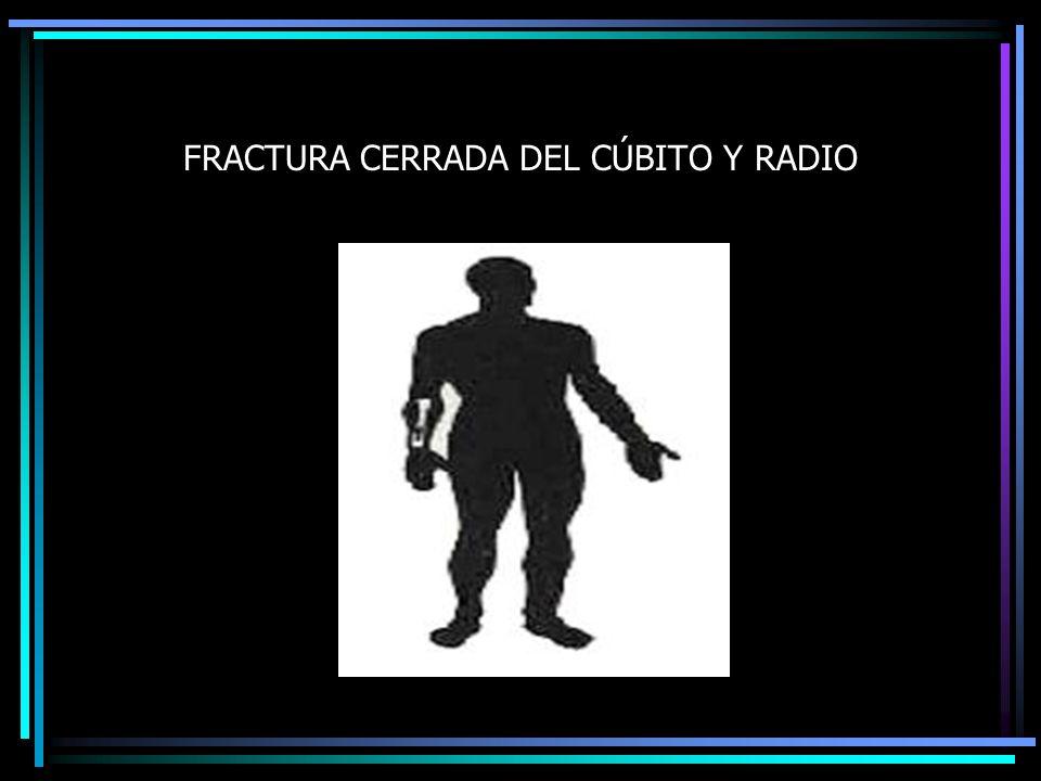 FRACTURA CERRADA DEL CÚBITO Y RADIO