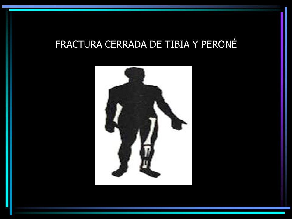 FRACTURA CERRADA DE TIBIA Y PERONÉ