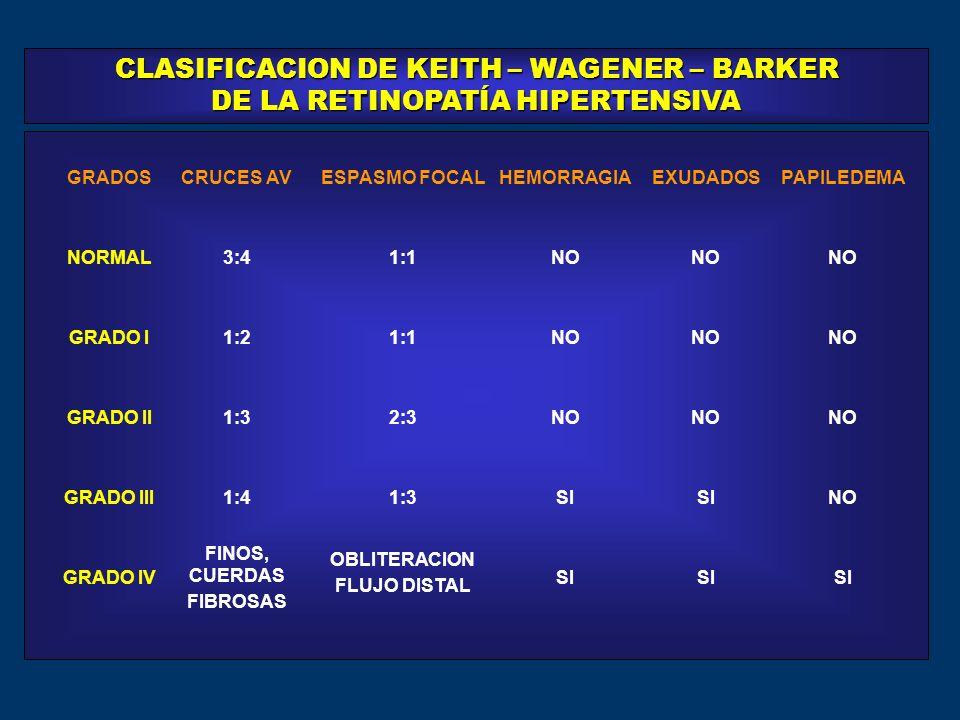 CLASIFICACION DE KEITH – WAGENER – BARKER DE LA RETINOPATÍA HIPERTENSIVA GRADOSCRUCES AVESPASMO FOCALHEMORRAGIAEXUDADOSPAPILEDEMA NORMAL3:41:1NO GRADO I1:21:1NO GRADO II1:32:3NO GRADO III1:41:3SI NO GRADO IV FINOS, CUERDAS OBLITERACION SI FIBROSAS FLUJO DISTAL