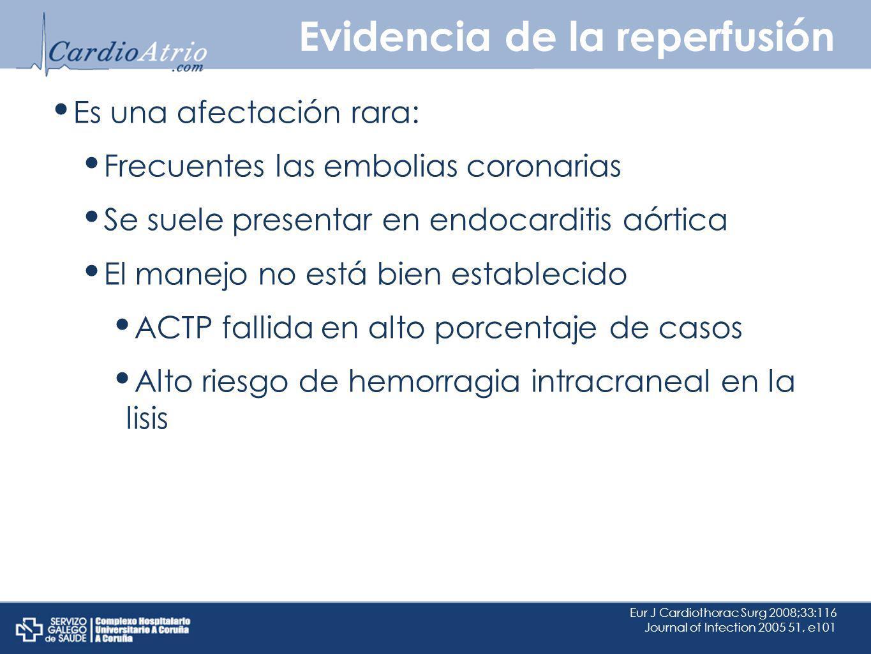 Evidencia de la reperfusión Es una afectación rara: Frecuentes las embolias coronarias Se suele presentar en endocarditis aórtica El manejo no está bi
