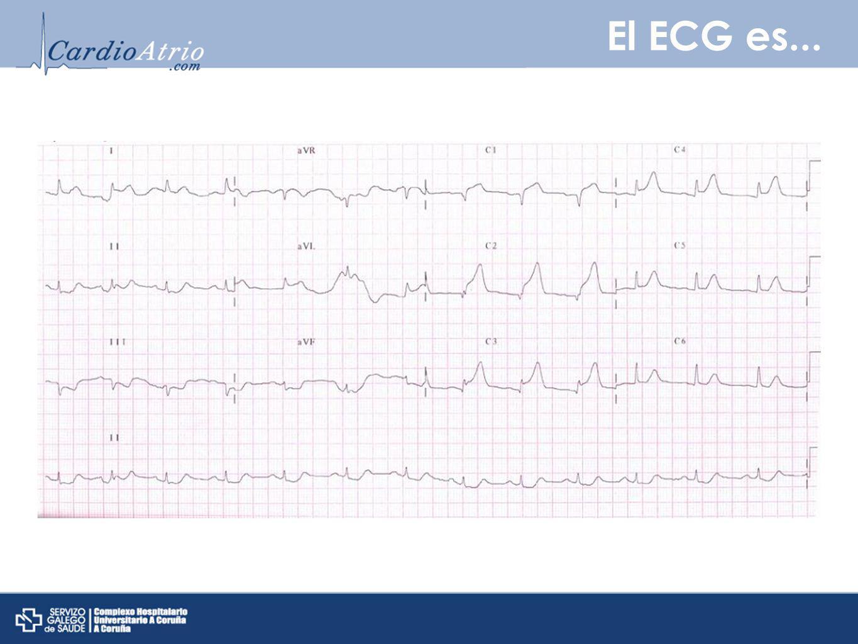 El ECG es...