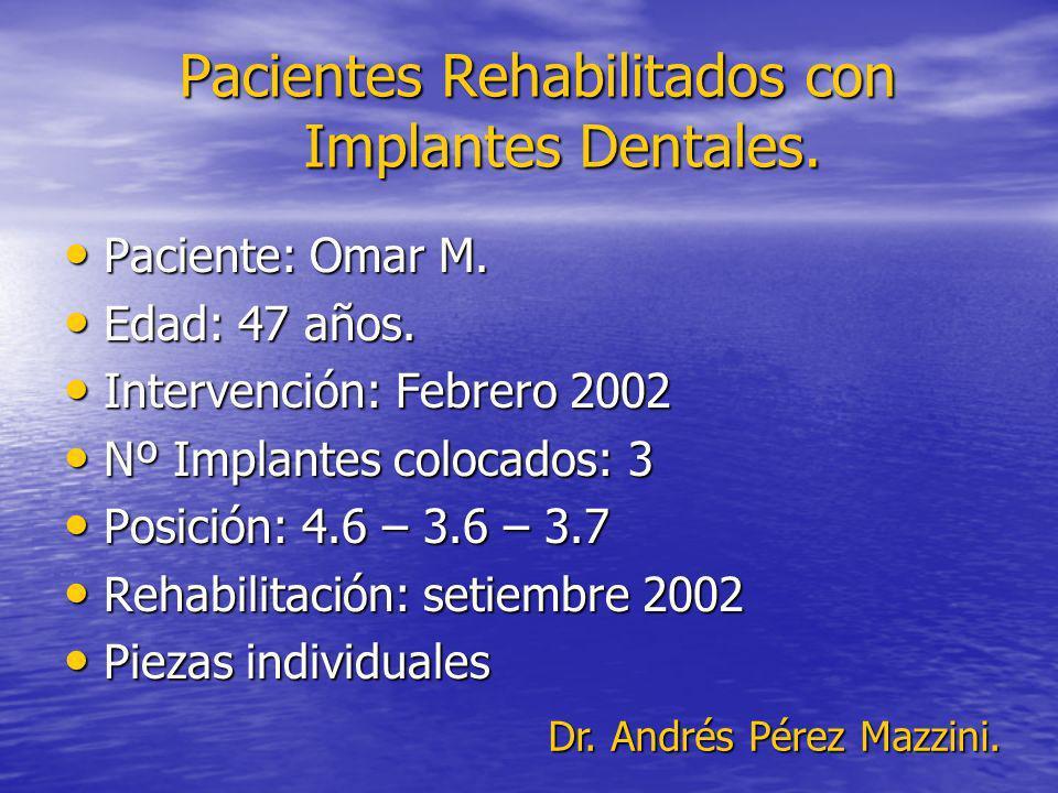 Pacientes Rehabilitados con Implantes Dentales. Paciente: Omar M. Paciente: Omar M. Edad: 47 años. Edad: 47 años. Intervención: Febrero 2002 Intervenc