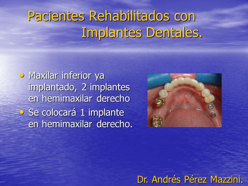 Pacientes Rehabilitados con Implantes Dentales. Maxilar inferior ya implantado, 2 implantes en hemimaxilar derecho Maxilar inferior ya implantado, 2 i