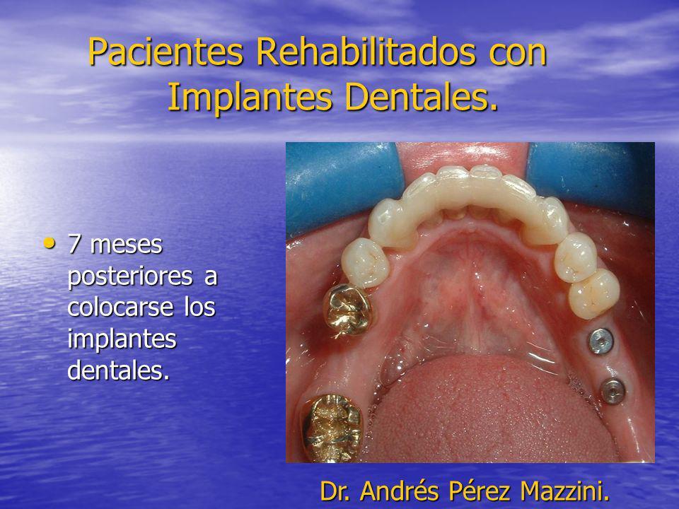 Pacientes Rehabilitados con Implantes Dentales. 7 meses posteriores a colocarse los implantes dentales. 7 meses posteriores a colocarse los implantes