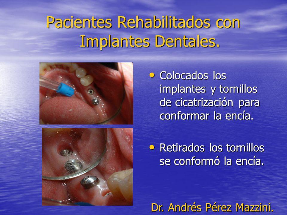 Pacientes Rehabilitados con Implantes Dentales. Colocados los implantes y tornillos de cicatrización para conformar la encía. Colocados los implantes