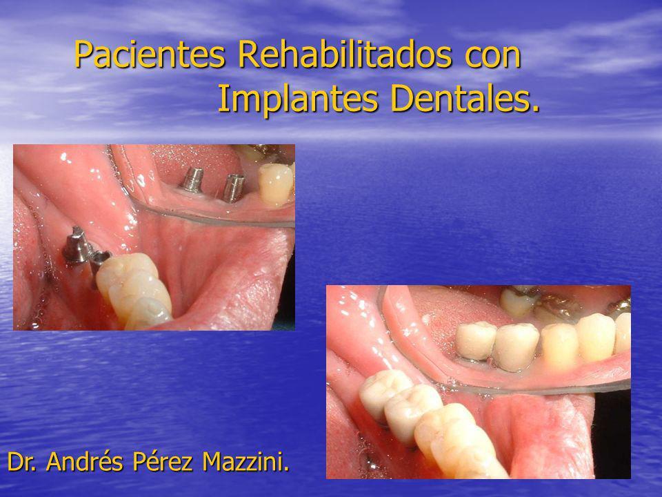 Pacientes Rehabilitados con Implantes Dentales. Dr. Andrés Pérez Mazzini.