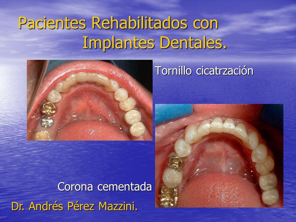Pacientes Rehabilitados con Implantes Dentales. Tornillo cicatrzación Tornillo cicatrzación Corona cementada Corona cementada Dr. Andrés Pérez Mazzini